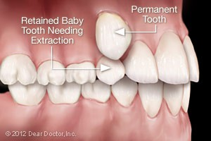 retained-baby-tooth