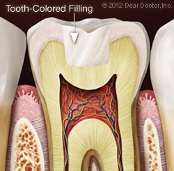 tooth-colored-filling